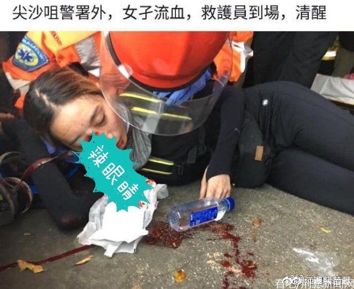 香港示威女子被同伴击中眼睛 反污蔑是警方弄伤