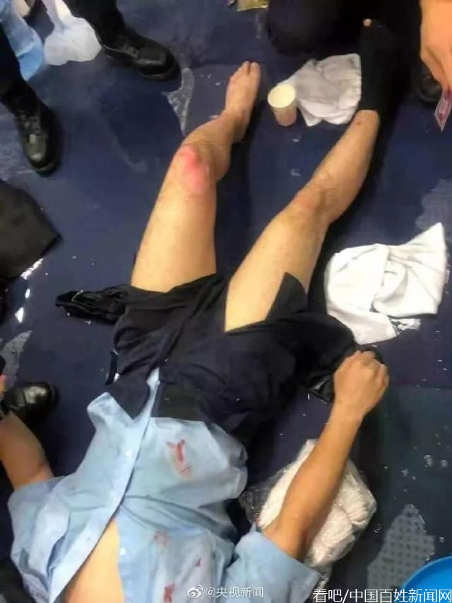 受伤香港警员对暴徒喊话:我们香港警察绝对会果断执法!