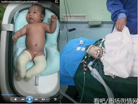 女子诉称其刚出生50天的女儿因麻醉过量术中夭折
